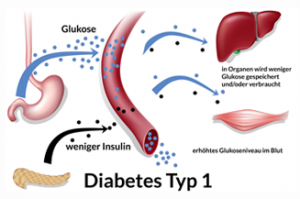 Diabetes mellitus Typ 2: Ursachen, Symptome, Behandlung - diabetes.moglebaum.com